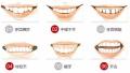 什么时候矫牙比较好?