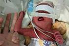早产女婴仅有手腕大