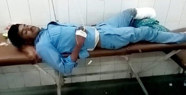 印度医院涉嫌用伤员断腿当枕头 4名医护人员被停职