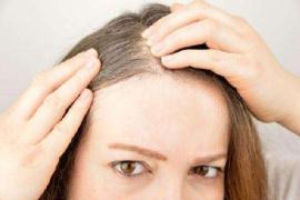 科学家找到白发基因